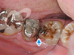 2:銀歯を外した状態