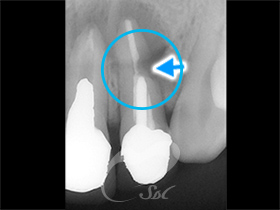上の歯のレントゲン