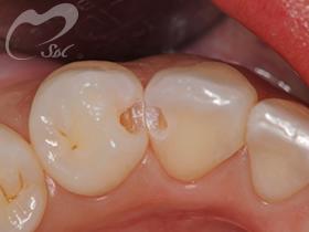4:虫歯の除去後