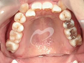 2:治療後(上下の歯)