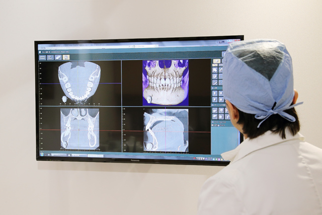 佐々木歯科のインプラントイメージ3b