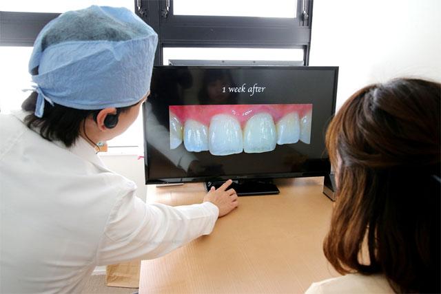 佐々木歯科の審美歯科イメージ1b