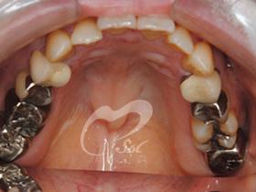 治療前(上の歯)