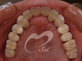 治療後(上の歯)