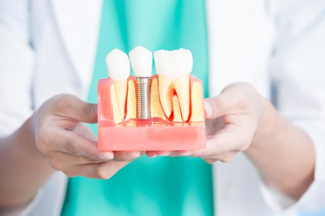 佐々木歯科のインプラントイメージ3a