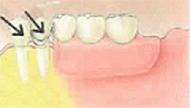 入れ歯の場合イメージ
