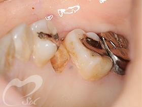 治療前:横と正面から見た状態