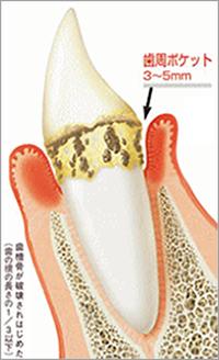 歯周ポケット3~5mm