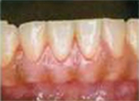 歯周ポケット3~5mmイメージ