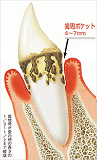 歯周ポケット4~7mm