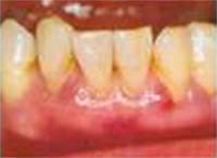 歯周ポケット4~7mmイメージ