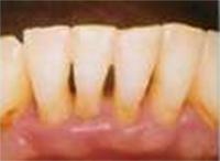 歯周ポケット6mm以上イメージ