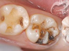 1:虫歯の治療前