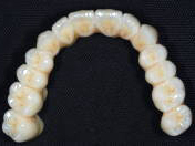 阿倍野、天王寺の歯医者、佐々木歯科のジルコニアブリッジ