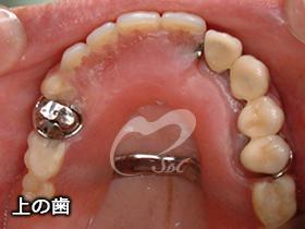 従来の義歯