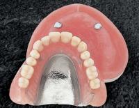 阿倍野、天王寺の歯医者、佐々木歯科の磁性アタッチメントimage