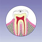 阿倍野、天王寺の歯医者、佐々木歯科の虫歯治療:虫歯1