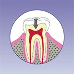 阿倍野、天王寺の歯医者、佐々木歯科の虫歯治療:虫歯2