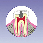 阿倍野、天王寺の歯医者、佐々木歯科の虫歯治療:虫歯3