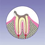 阿倍野、天王寺の歯医者、佐々木歯科の虫歯治療:虫歯4