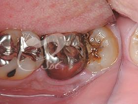 1:銀歯を外す前