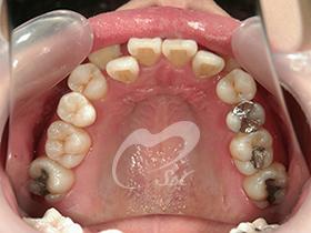1:治療前(上下の歯)