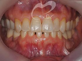 治療後(前歯)