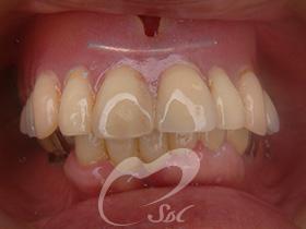 治療前(前歯)
