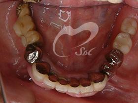 治療前(下の歯)