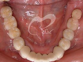 治療後(下の歯)
