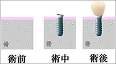 佐々木歯科のインプラントイメージ2