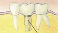 佐々木歯科のインプラントの場合イメージ