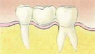 佐々木歯科のブリッジの場合イメージ