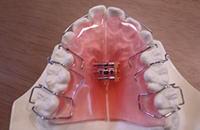 顎骨の成長を促す取り外し式
