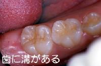 歯に溝がある