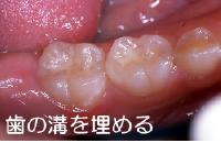 歯の溝を埋める